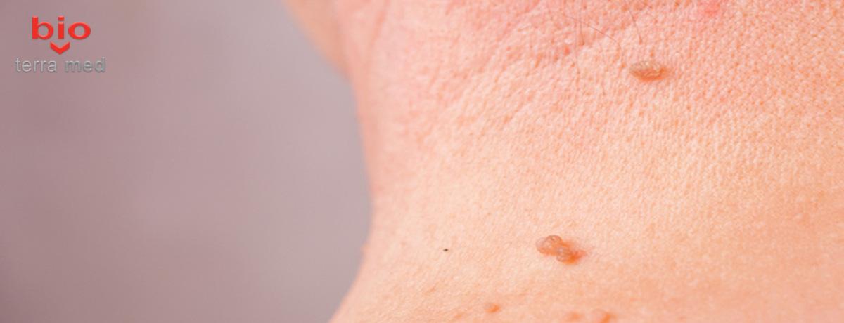 papilomele pe medicamente tratamente corporale recenzii