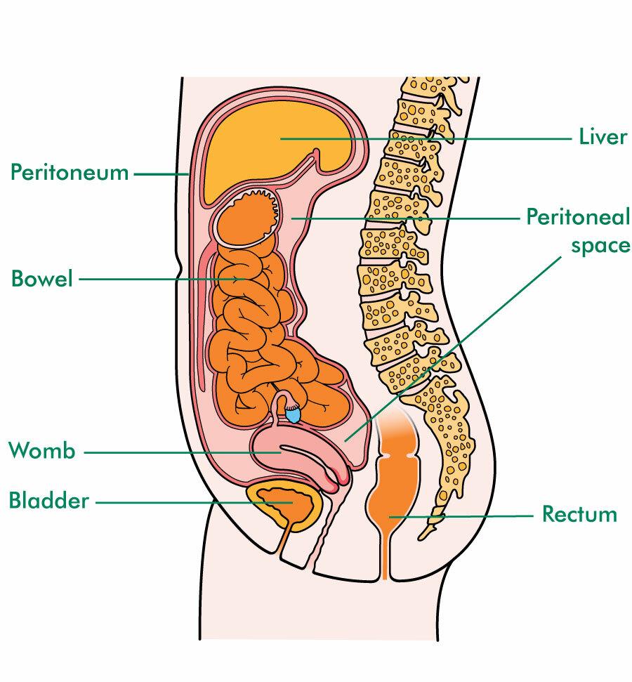 cancer of gastric antrum