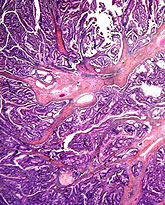 rectal cancer histopathology