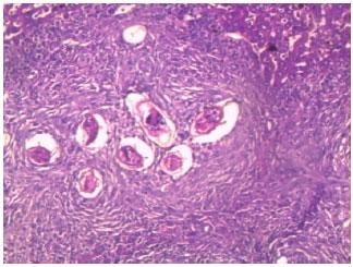 Schistosomiasis granuloma formation