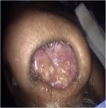 sinonasal papilloma benign)