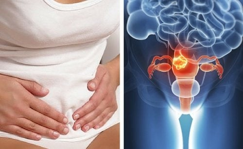 sintomi papilloma cervice
