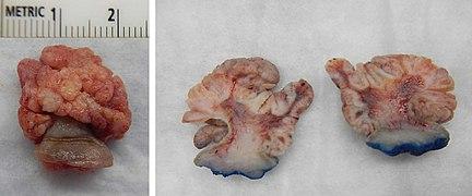 squamous papilloma face)