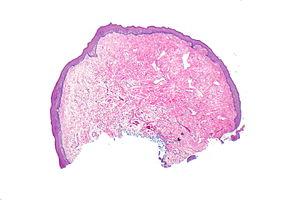 squamous papilloma of tongue pathology)
