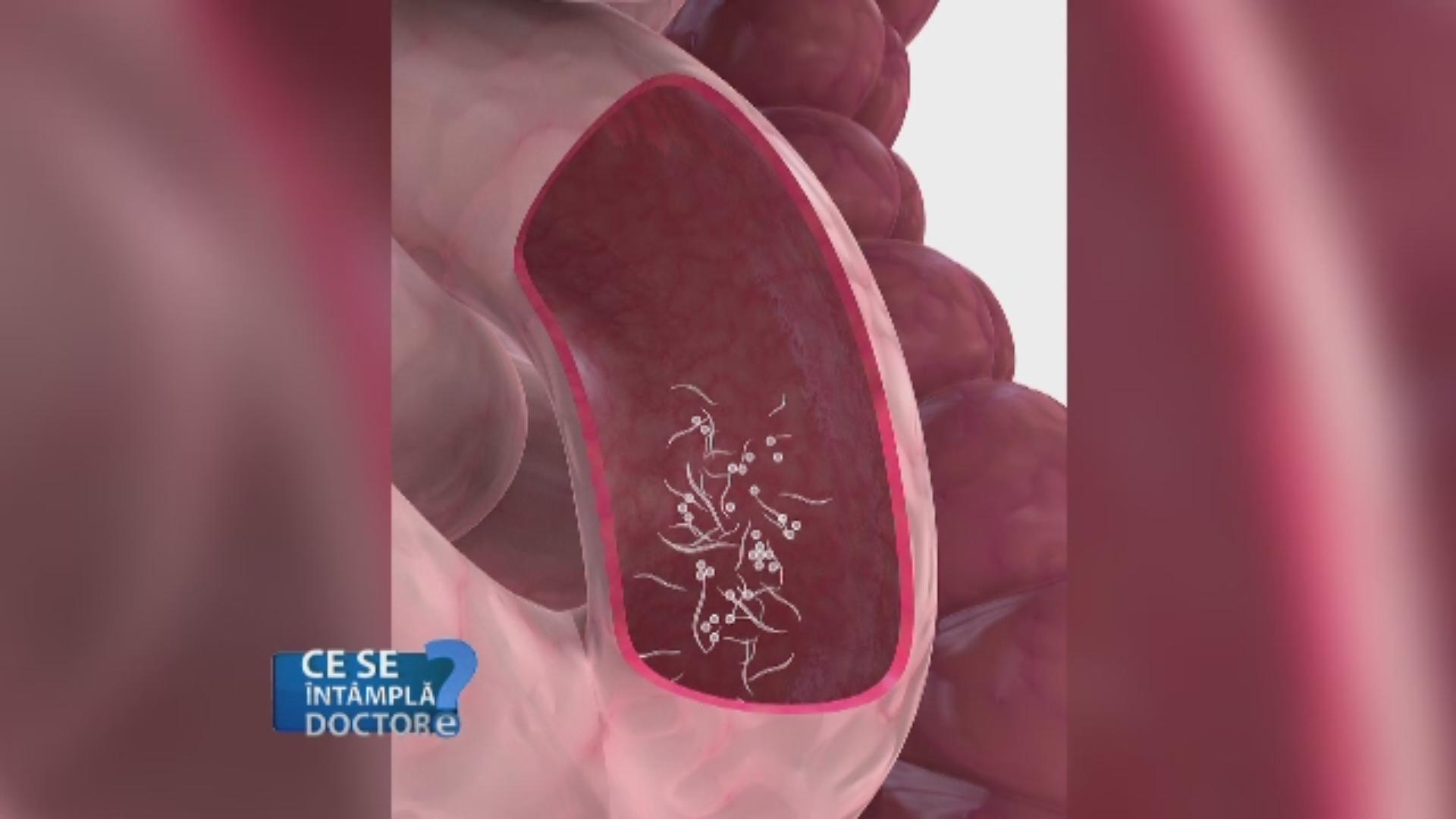 Oxyuris vermicularis treatment, Papiloma humano y sus sintomas Viermi helminths pinworm medicine