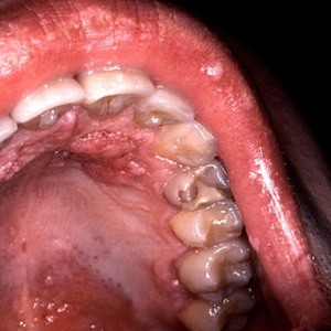 throat cancer associated with hpv