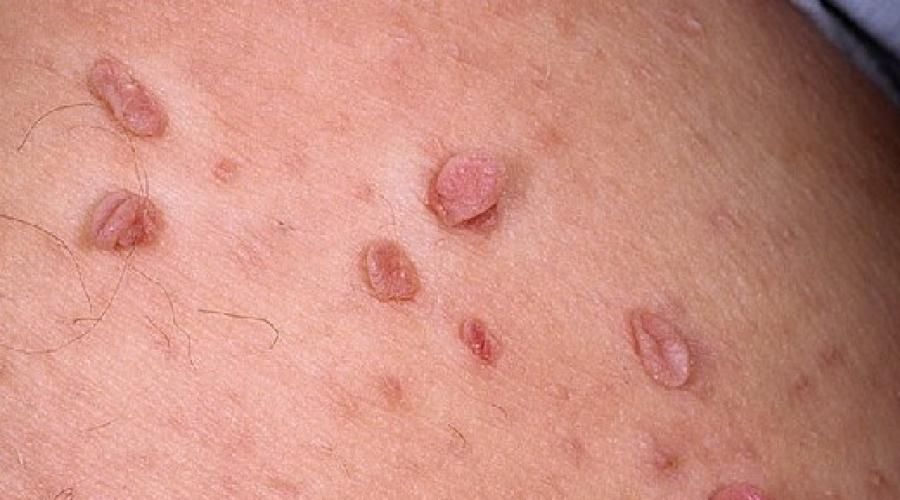 tipuri de papiloame pe piele