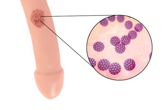 traitement papillomavirus chez les hommes