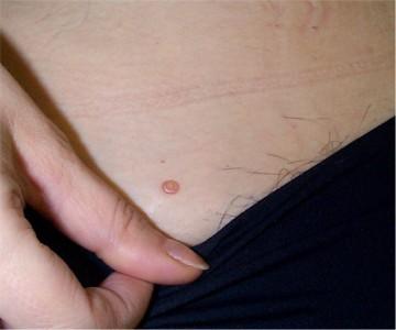 Verrue papillomavirus pubis - Le HPV (papilloma virus) ! C'est quoi ? #14 (+LSF) hpv vaccine facts