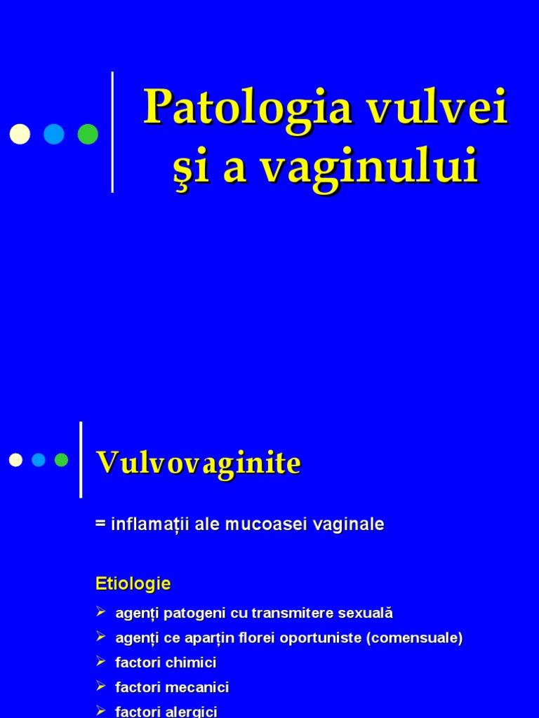 inflamatie in jurul vaginului