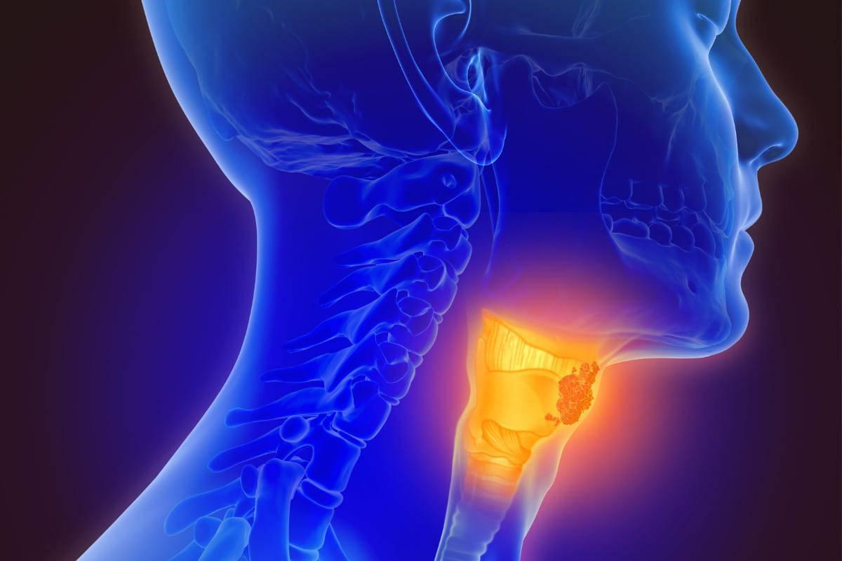 virus hpv e tumore alla gola)