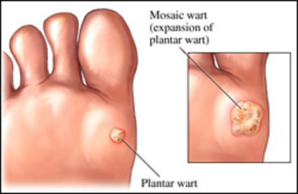 Wart causing foot pain, Papiloma uman virus