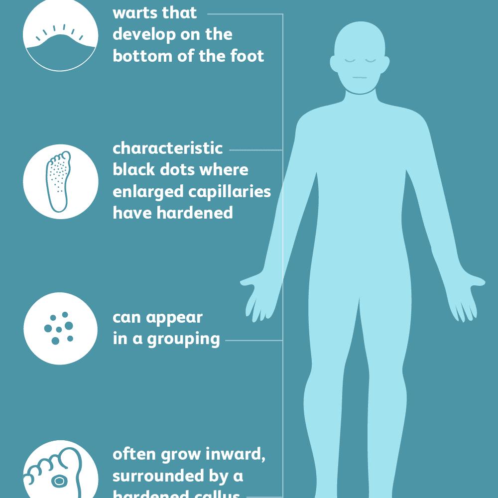 wart under foot symptoms hpv impfung jungen impfschema
