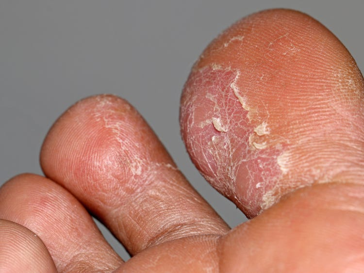 warts hands rash)
