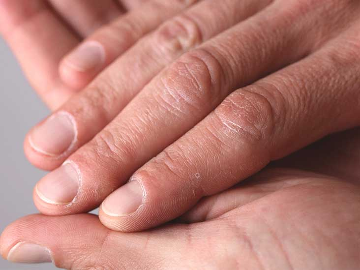 warts on hands causes)