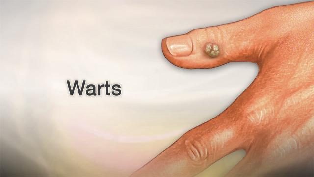 warts on hands pregnancy giardia și trichomonas