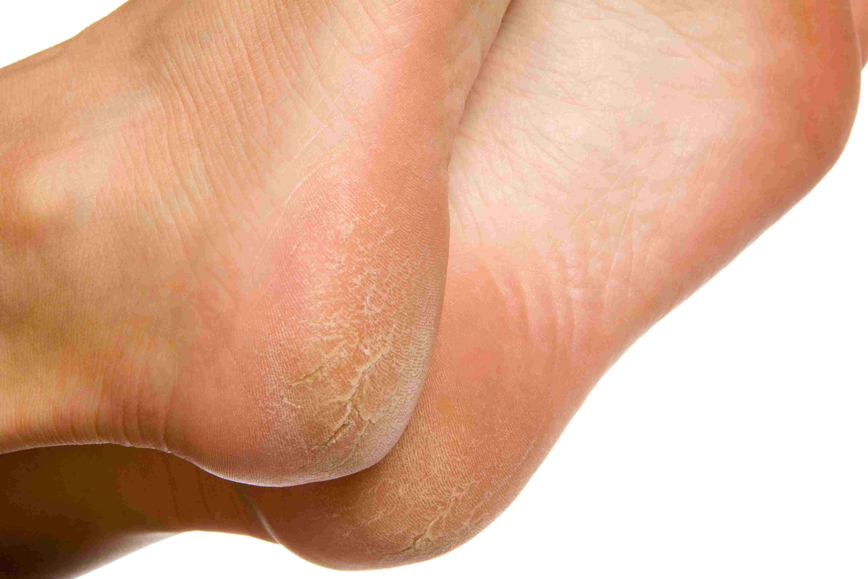 hpv in feet)