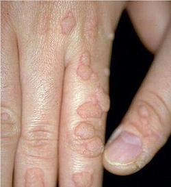 papillomavirus homme soigner)