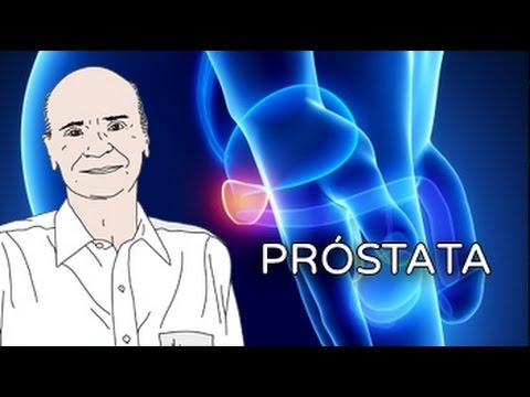 Cancer de prostata quando fazer o exame - Cancer de prostata urinar sangue