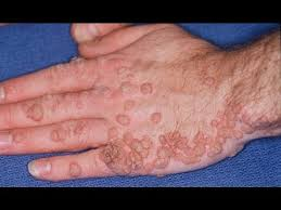 how do you get human papillomavirus infection)