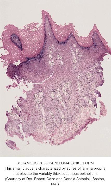 Esophagus papilloma pathology Esophageal papilloma pathology
