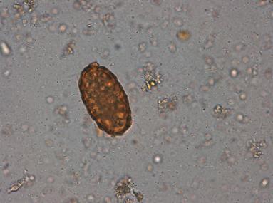 analiza paraziti intestinali)
