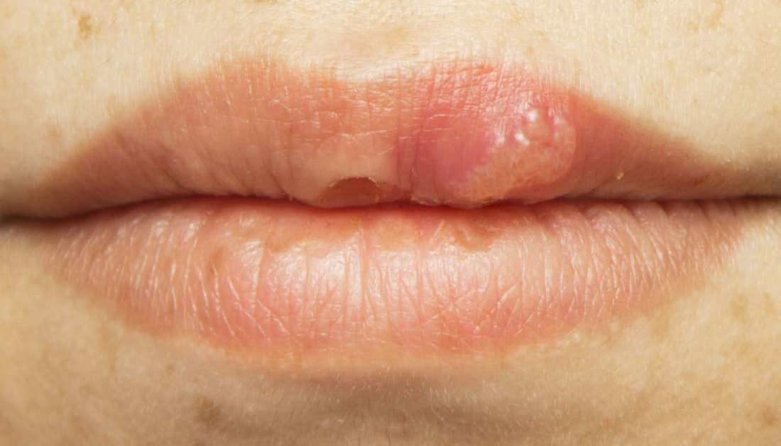hpv and mouth sores)