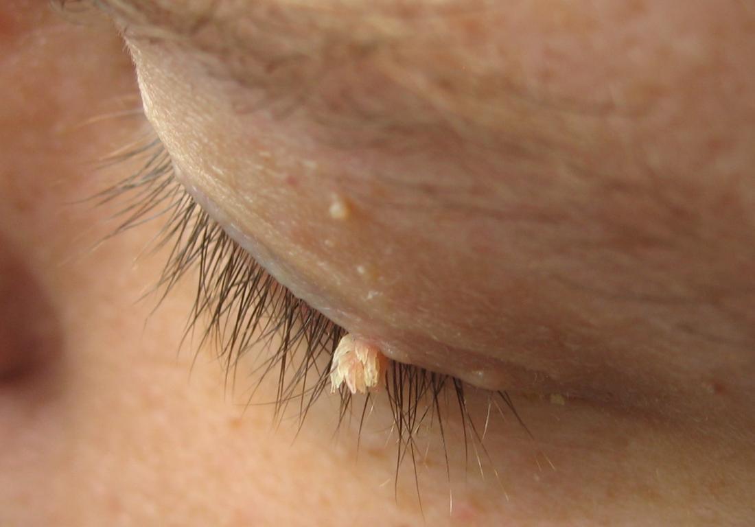 Papilloma removal nhs
