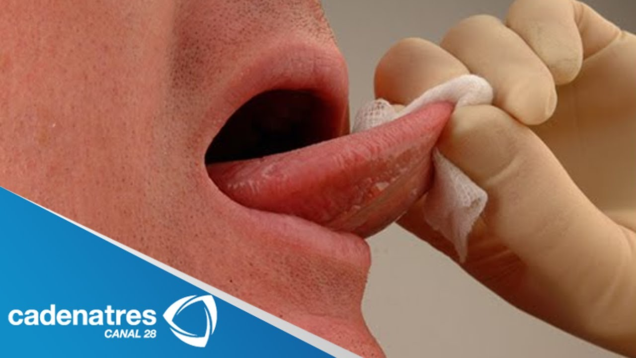 cancer bucal sintomas iniciales
