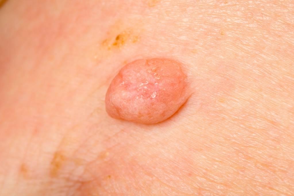 Infectia HPV – Factori de Risc, Teste HPV, Tratament, Vaccin Anti HPV