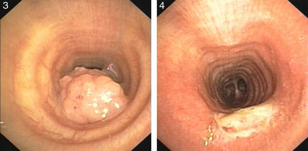 airway papillomas hpv cancer related