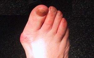 Sfatul Farmacistului: mancarime intre degetele de la picioare