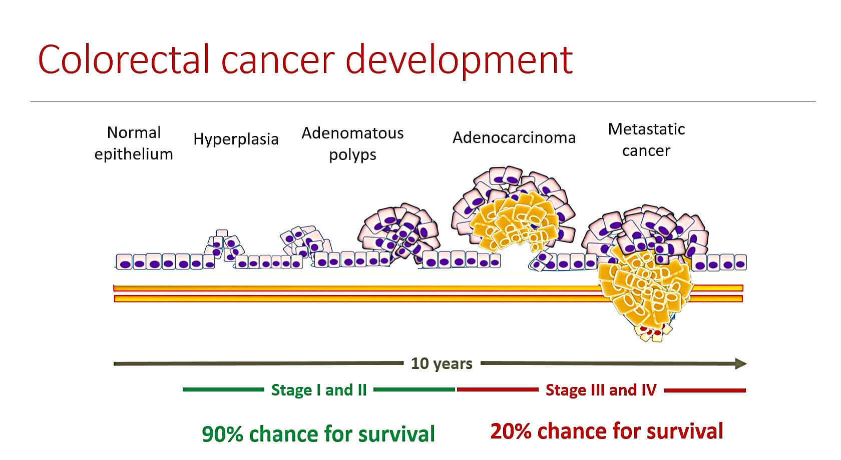 colorectal cancer crc)