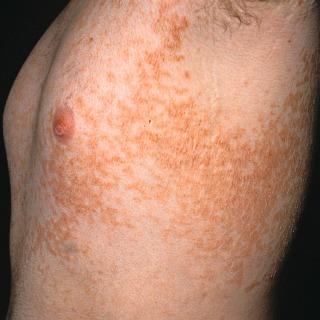 papillomatosis skin definition)