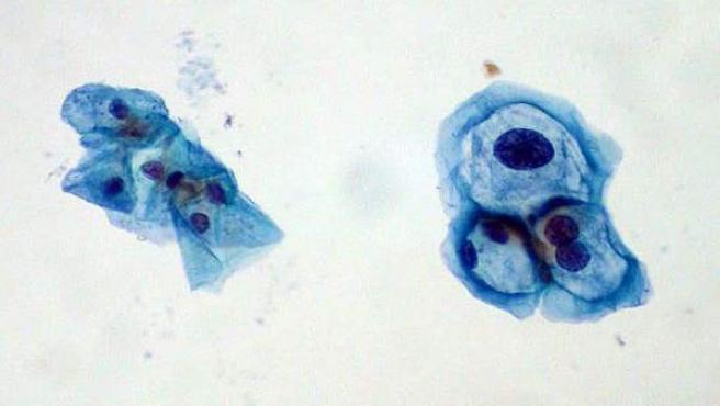 Biopsia De Cervix