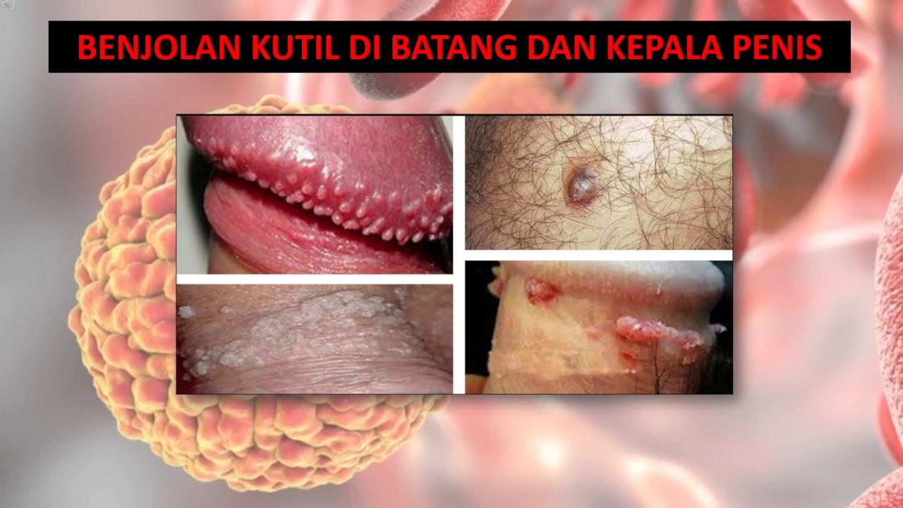 hpv y herpes es lo mismo