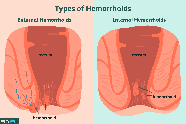 Rectal cancer or hemorrhoids, Hemoroizii – simptome și factori de risc