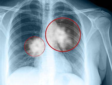 lumânare de detoxifiere colon cum se elimină papiloamele de pe axile