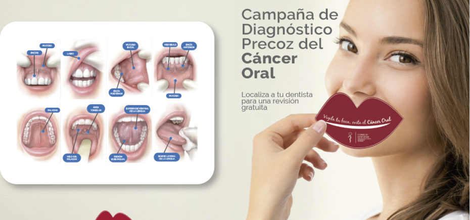 cancer bucal informacion)