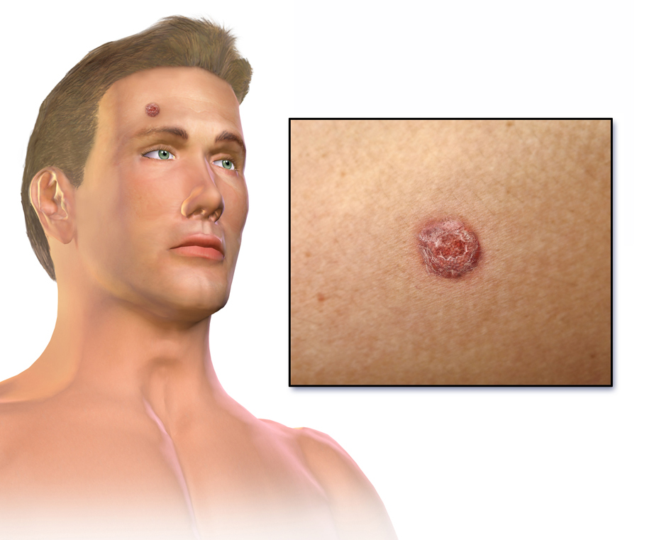 cancer epitelial de piel