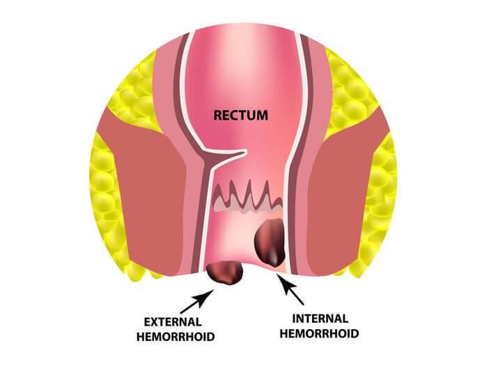 rectal cancer or hemorrhoid)