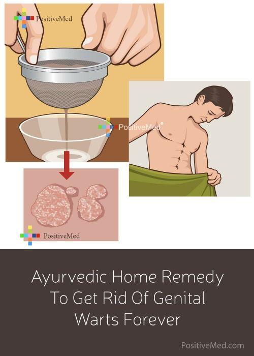 hpv warts cure natural negi genitale ale preputului