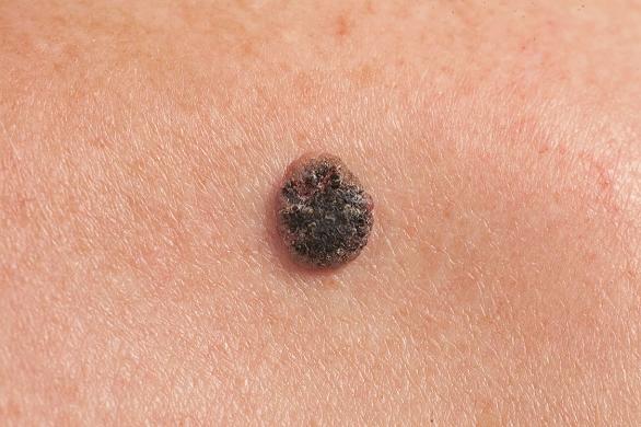 Cancerele de piele