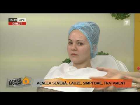Acneea detoxifiantă hepatică - Viermi helminți