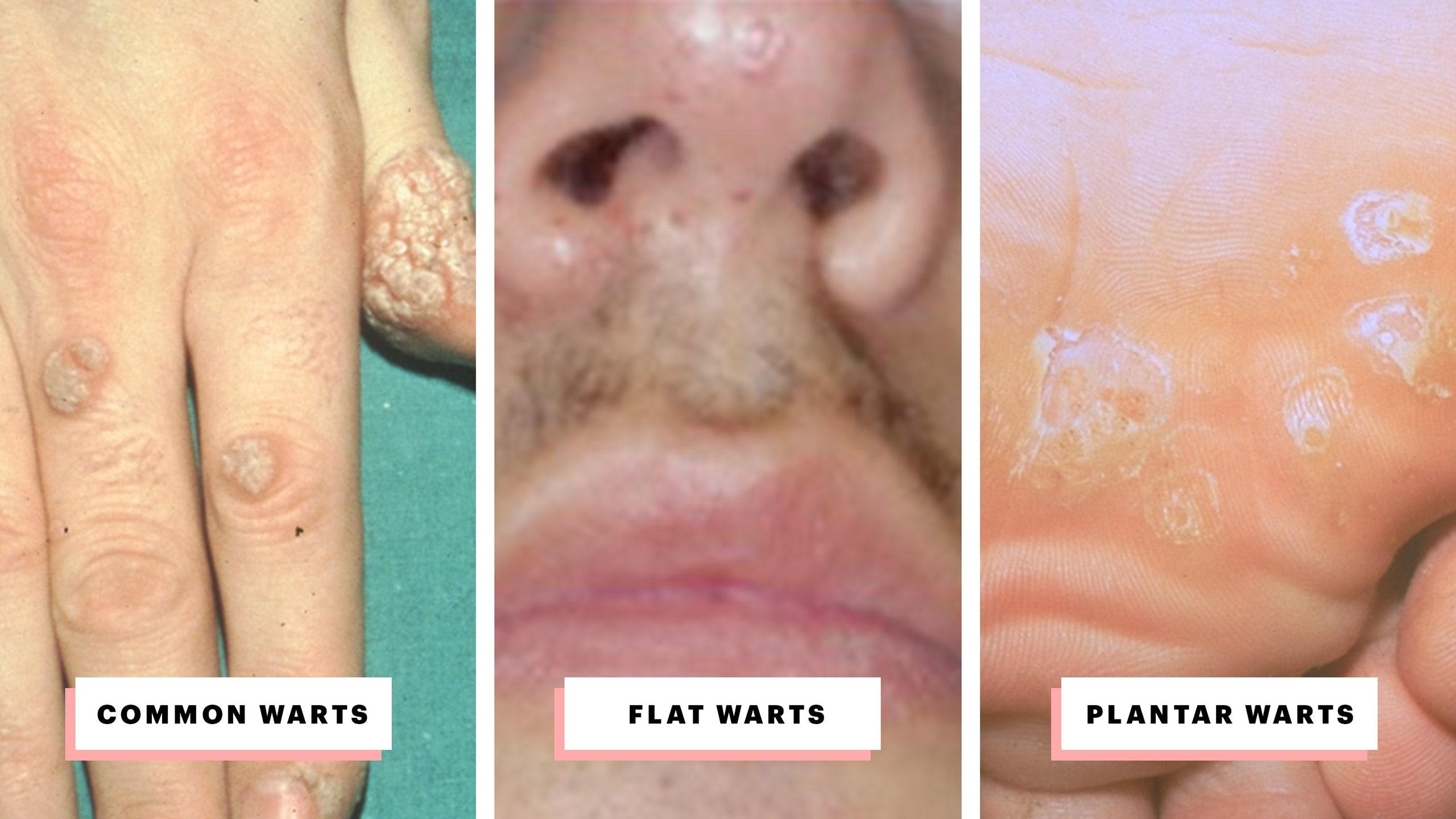 Hpv cure mexican scientist, Human Papilloma Virus | SACCSIV - blog ortodox