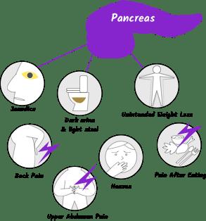 cancer pancreatic symptoms