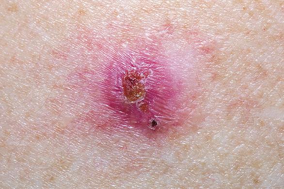 cancer scuamocelular