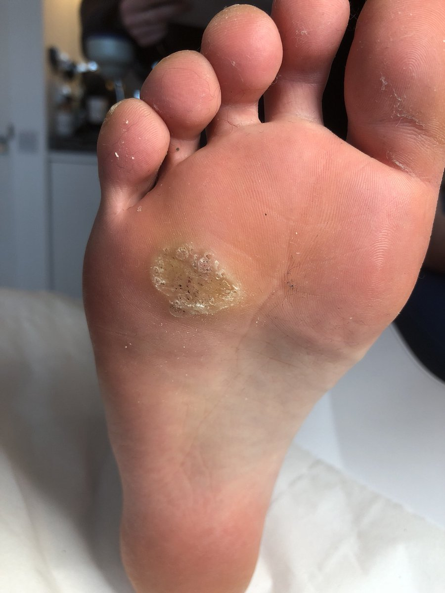 verruca on foot treatment)
