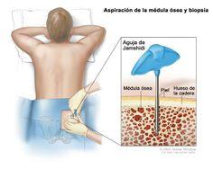 coagularea negi genitale hpv sintomi gola