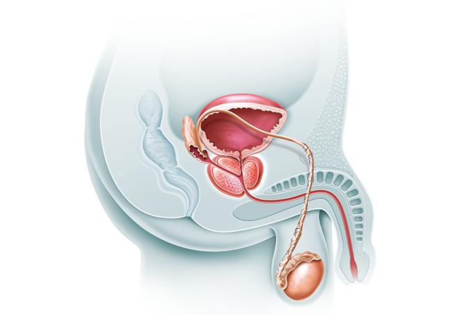 cancer de prostata o que